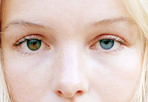 An Overview of Heterochromia